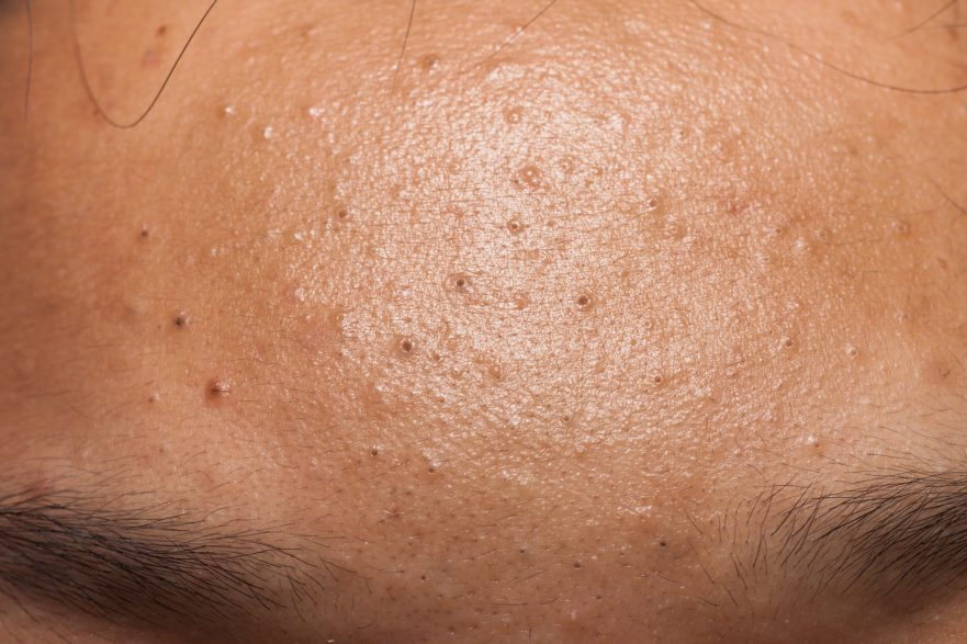 Sebaceous clogged pores