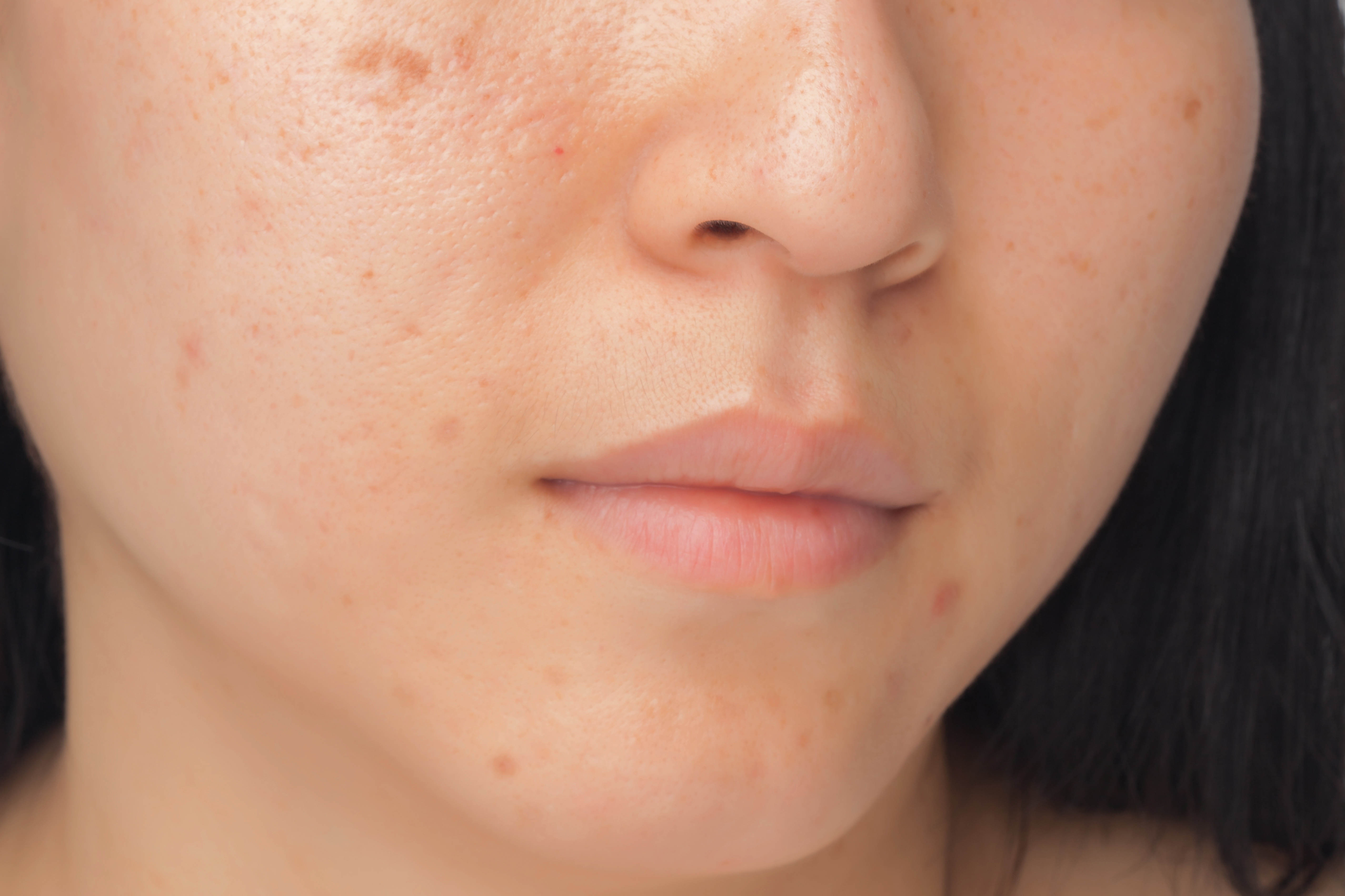 does acne matter