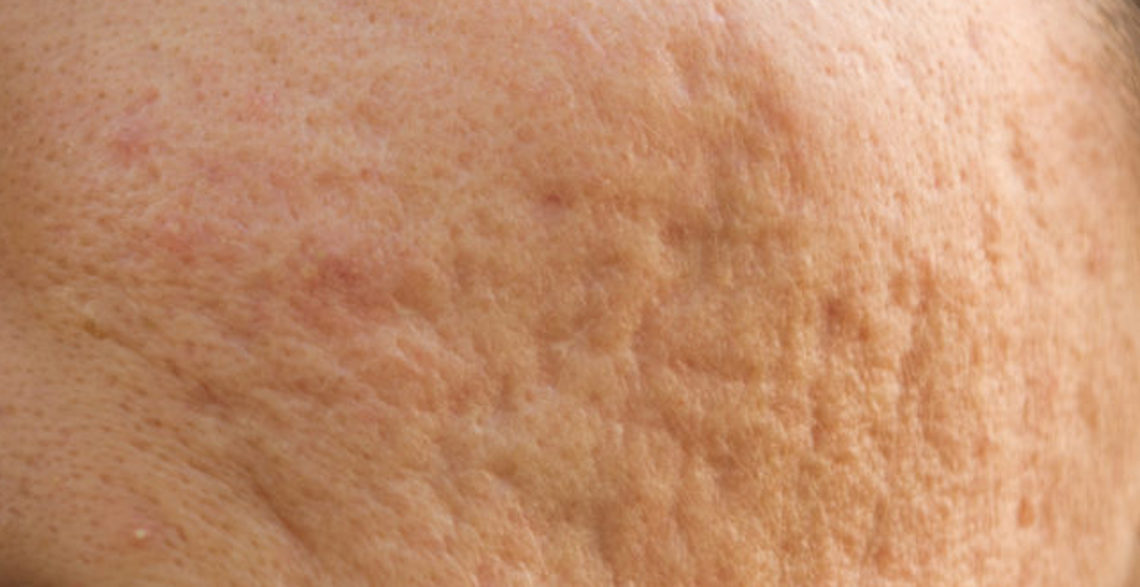 The 5 Kinds of Acne Scars & How To Treat Each Type - The Pretty Pimple