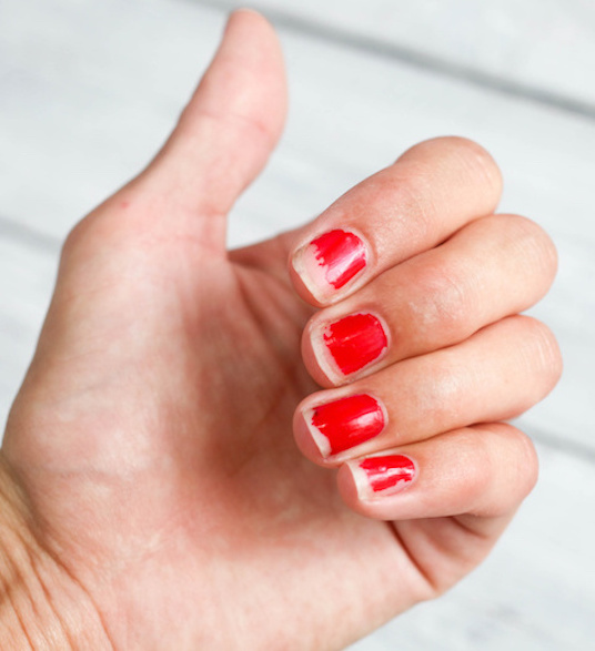Got Thin, Peeling, or Cracked Nails? Here Are 6 Reasons Why! - The ...