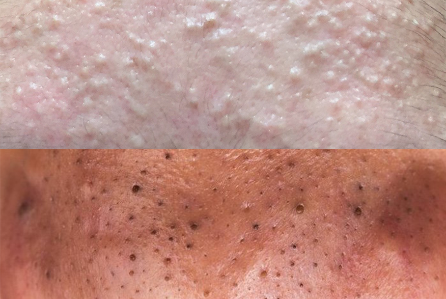 Gigantic Blackheads: Dilated Pore of Winer Explained! - The