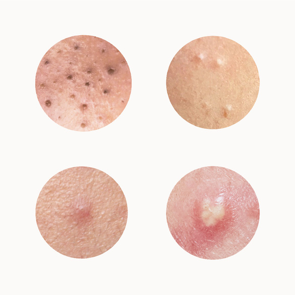 Gigantic Blackheads: Dilated Pore of Winer Explained! - The Pretty